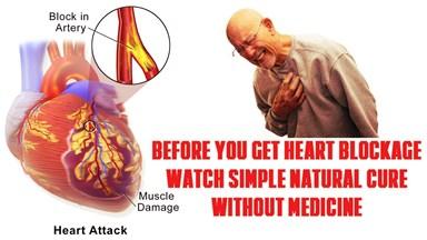 avoid-reduce-reverse-heart-blockage-clogging-artery-wall