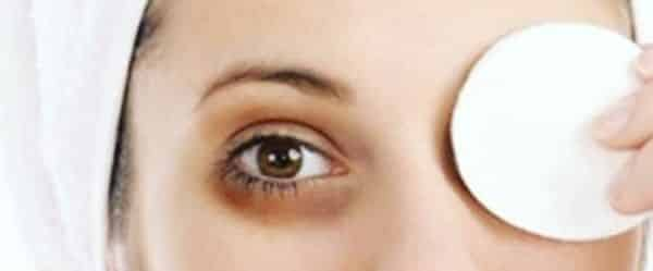 eyes dark circles causes and natural remedies